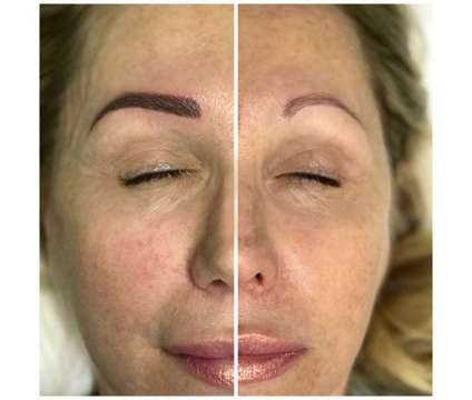 Microblading/Eye Lash Extension/Carbon Peel